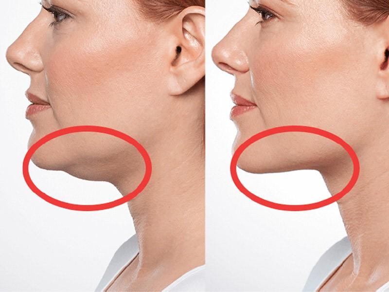 کلینیک پوست و مو- غبغب