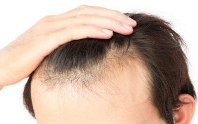 کلینیک پوست و مو-مو