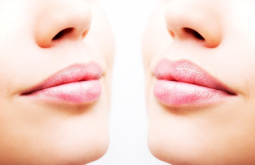 کلینیک پوست و مو- بوتاکس لب