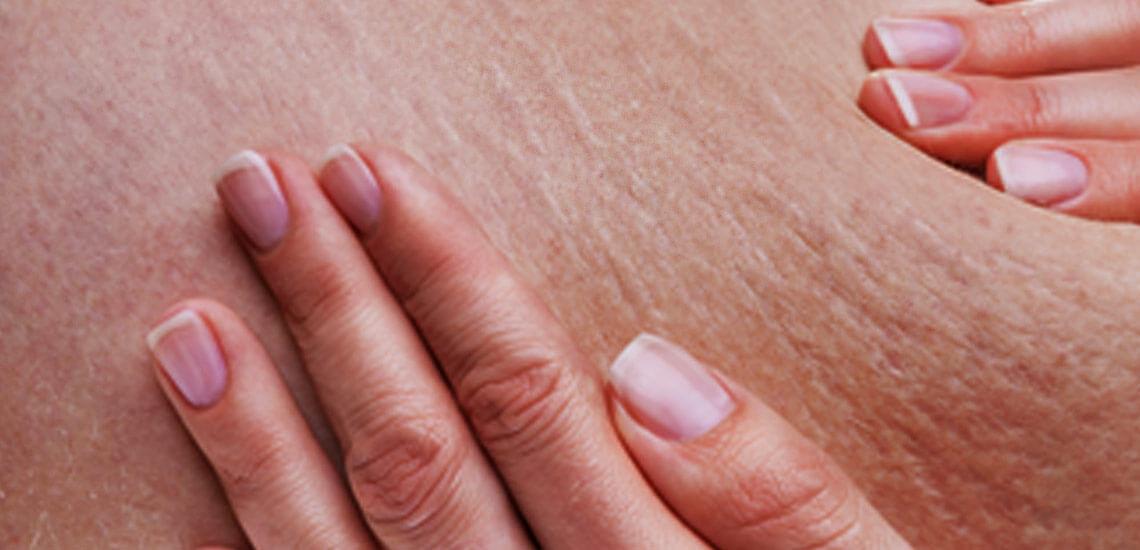 کلینیک پوست و مو- مزوتراپی لاغری