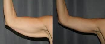کلینیک پوست و مو-مزوتراپی لاغری