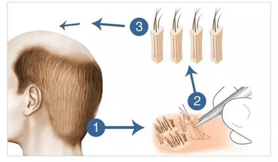 کلینیک پوست و مو- کاشت مو