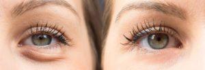 مراقبت پس از تزریق ژل زیر چشم
