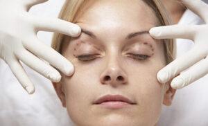 • مراقبت های بعد از جراحی پلک