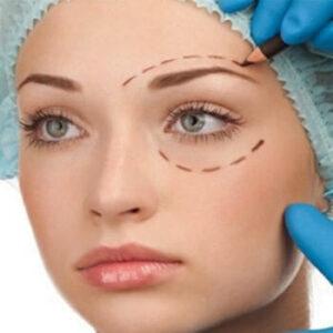 هزینه جراحی پلک ( بلفاروپلاستی)