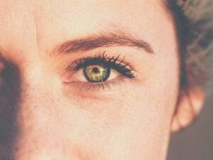 کوچک شدن چشم پس از تزریق بوتاکس