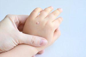 درمان بیماری پوستی اطفال متخصصان پوست و مو کلینیک ایلیا