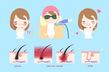 فواید لیزر موهای زائد