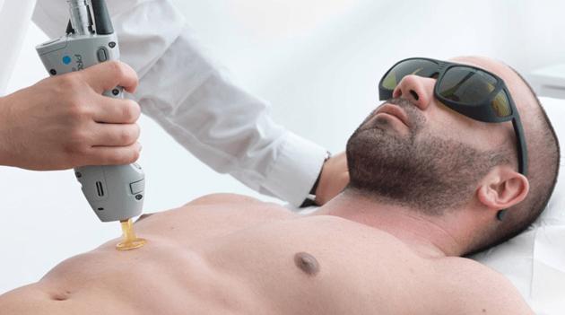لیزر درمانی ممنوع