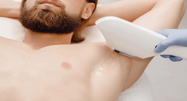 عوارض لیزر موهای زائد برای مردان